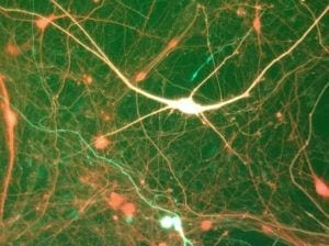 Neurons marked with fluorescence, which the scientists used for identification of specific classes of neural cells.
